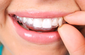 invisalign-orthodontics Saint Jerome